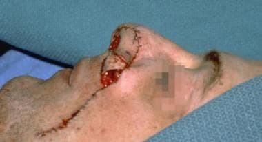 Case 5. Intraoperative result after inset of the f