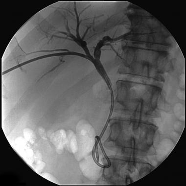 Internal-external biliary drain in a patient with