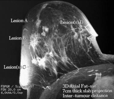 3D thick-slab maximum intensity projection (MIP) M