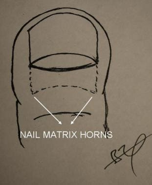 Nail matrix horns.