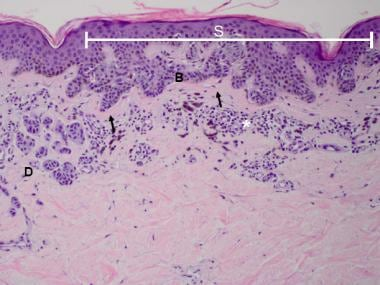 Compound melanocytic nevus with architectural diso