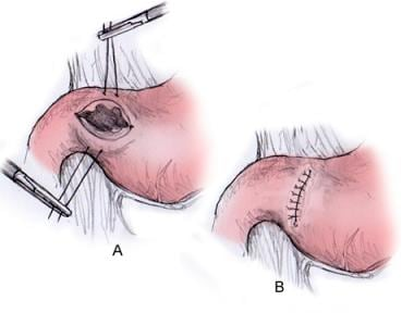 Pyloroplasty during laparoscopy.