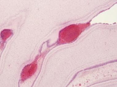 Microscopic appearance of cerebellar external gran