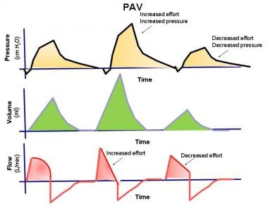 The pressure, volume, and flow to time waveforms f