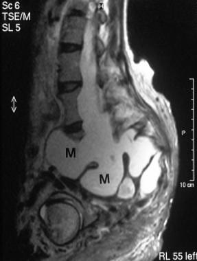 Sagittal T1-weighted unenhanced MRI scan in a 28-y