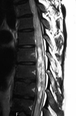 Spine ependymoma.