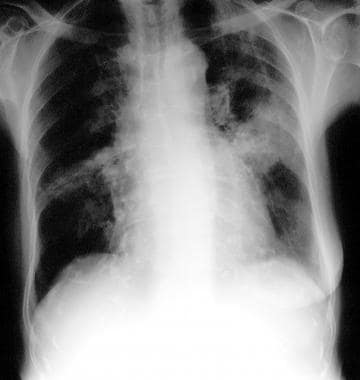 Chest radiograph in an 81-year-old woman with mitr