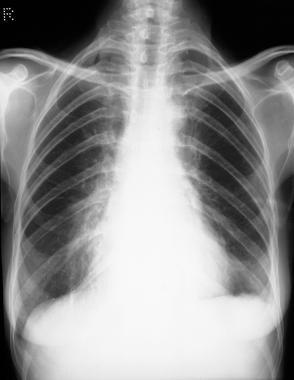 Standard chest radiograph shows mediastinal fibros