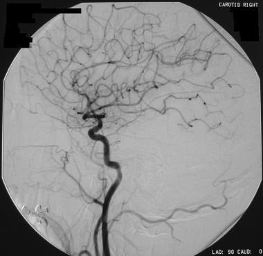 One-month follow-up angiogram in a patient who had