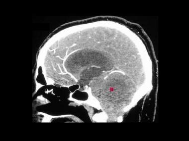 von Hippel-Lindau syndrome. Sagittal reconstructio