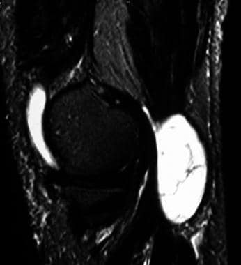 Sagittal, T2-weighted magnetic resonance image wit