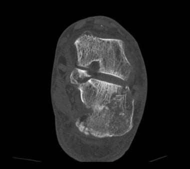 Calcaneus, fractures. Saunders type IV calcaneal f
