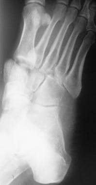 Fractured metatarsals. Image shows a Lisfranc disl