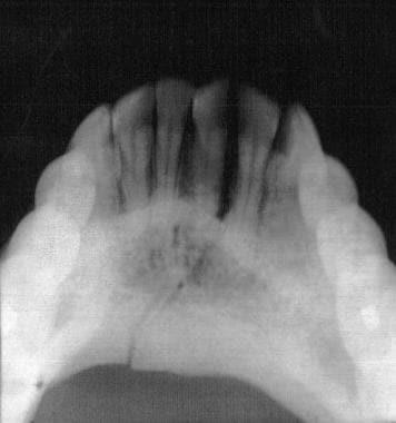 Mandibular fracture, occlusal radiograph. Courtesy