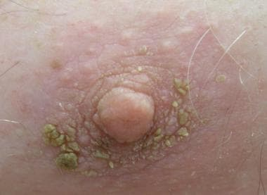 A close-up of the patient's right nipple/areola co