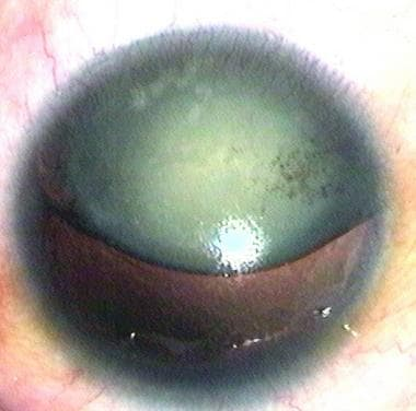Aniridia with superiorly dislocated cataract.