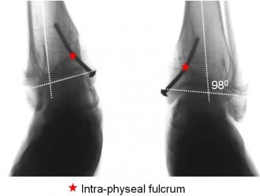 A drawback of the intraphyseal fulcrum is the rigi