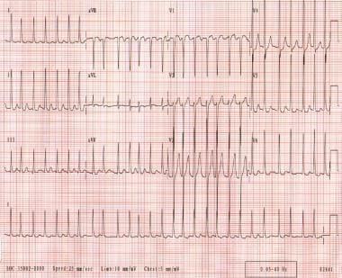 Atrial fibrillation. The patient's ventricular rat