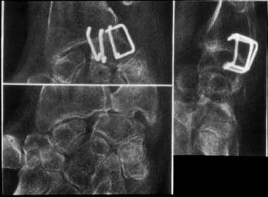 Radiolunate fusion with staples.
