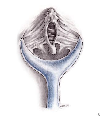 nitroglycerin topical anal