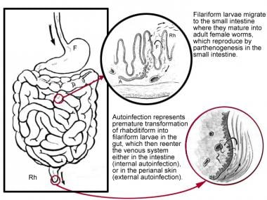 Third stage, life cycle of Strongyloides stercoral