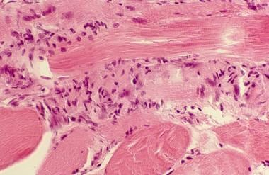 Close view of muscle biopsy, showing chronic infla