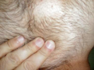 Genital wart in pubic area.