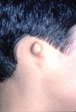 Grade 4 microtia (anotia). Note the absence of car