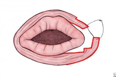 Schematic representation of orbicularis oris muscl