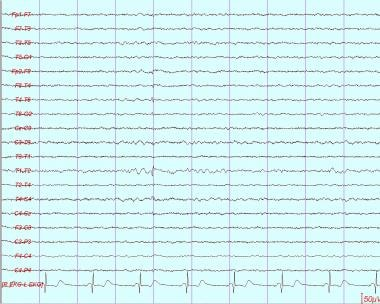 Small sharp spike is present in right temporal reg