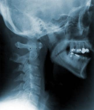 This radiograph shows the normal relationships bet