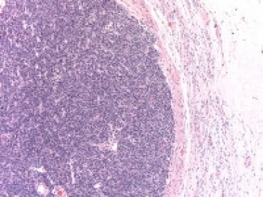 Poorly differentiated Sertoli-Leydig cell tumor sh