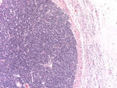 Poorly differentiated Sertoli-Leydig cell tumor sh