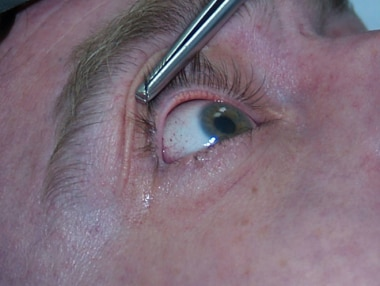 Petechiae in the eyelids, sclerae, and face due to