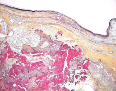 Histologic section of the cusps from a surgically-
