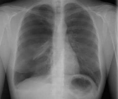 A large, right-sided pneumothorax has occurred fro