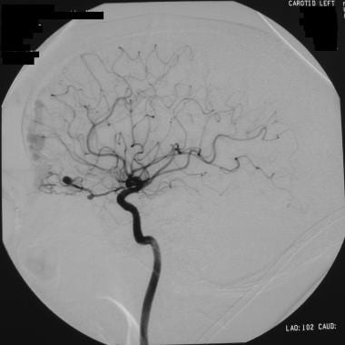 Left internal carotid angiogram in a patient with