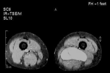 Fat-saturated magnetic resonance imaging (MRI) sca