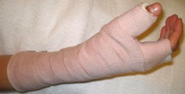 Thumb spica splint. Image courtesy of Kenneth R Ch