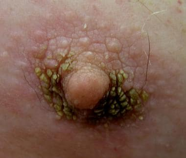 A close up of the patient's nipple/areola complex.