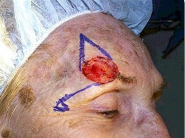 This patient has a defect above the right eyebrow