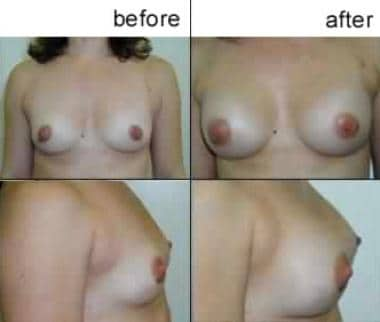 Breast augmentation, subglandular. A cup to large
