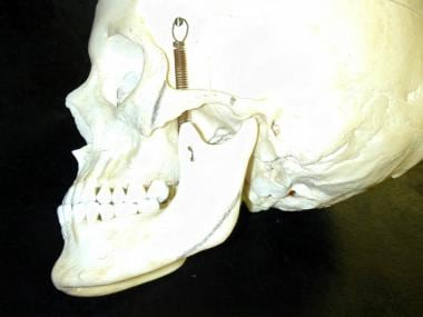 Zygomatic osteotomies are performed at the junctio