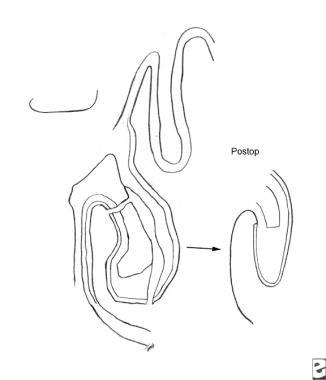 Inferior turbinoplasty.