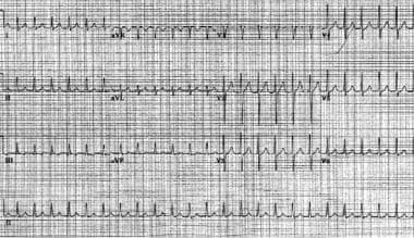 Atrioventricular nodal reentrant tachycardia. The