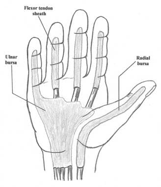 Flexor tendon sheaths and radial and ulnar bursae.