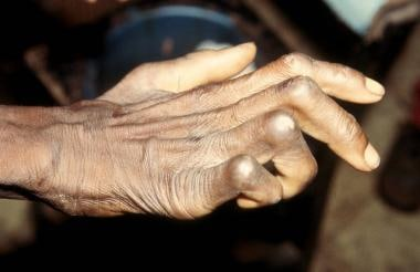 Characteristic clawed hand deformity caused by uln