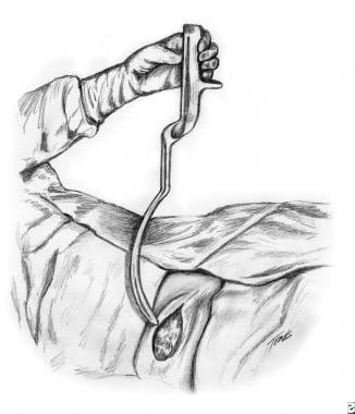 Forceps Delivery: Background, History of the Procedure ...