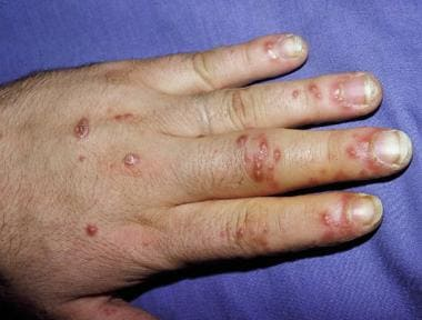 Painful erosions on fingers in patient with reacti
