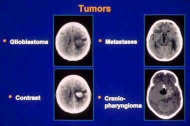 Neoplasms, brain. CT images of several tumor types